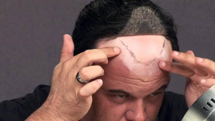 Hair Direct 1